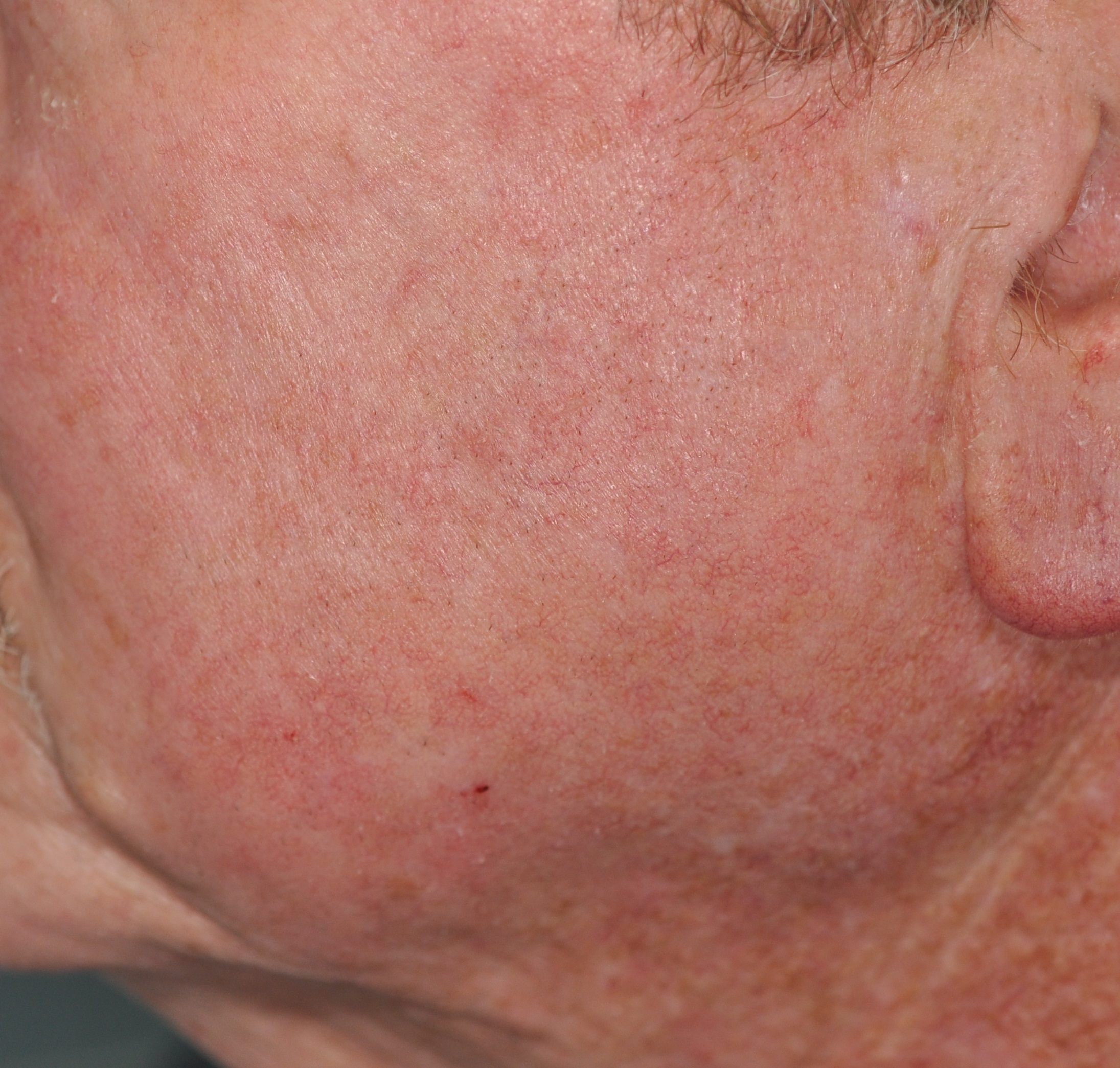 After rosacea treament
