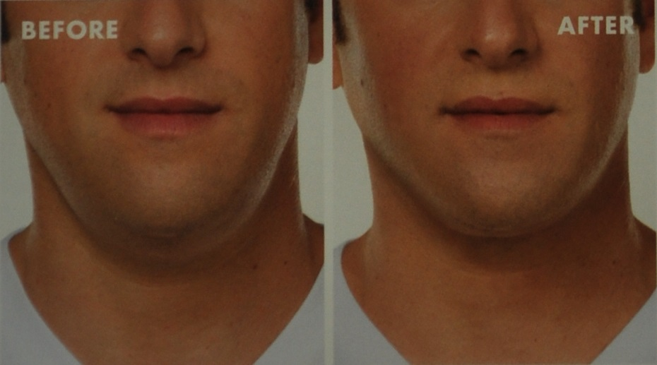 Treatment for double chin - before and after